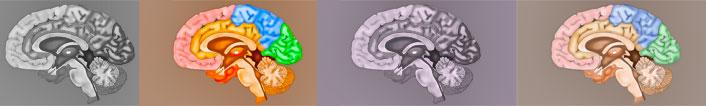 Three types of ischemic strokes