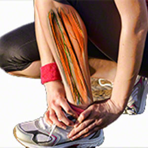 medial tibial stress syndrome education for physical therapists