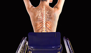 Spinal Cord Rehabilitation - The Next Step