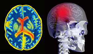 Complex Traumatic Brain Injury